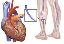 heart-treatment-angioplasty-bypass-surgery