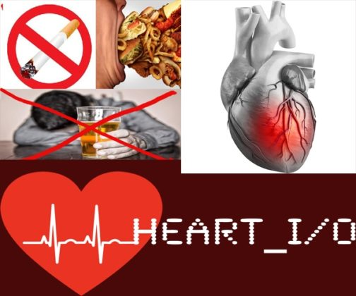 HEART ATTACK TREATMENT IN INDIA-A heart attack (Myocardial Infarction (MI) or Acute Myocardial Infarction (AMI)) is the interruption of blood supply to a part of the heart which causes heart cells to die.
